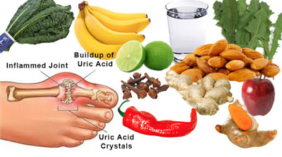 natural-gout-treatment-plant-based-diet